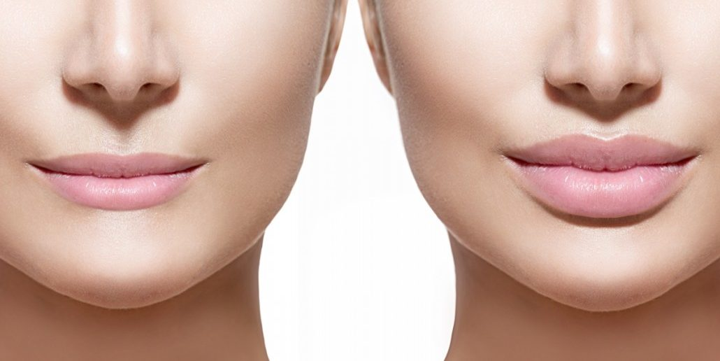 Optimized-lipfiller-1030x552-1030x516.jpg
